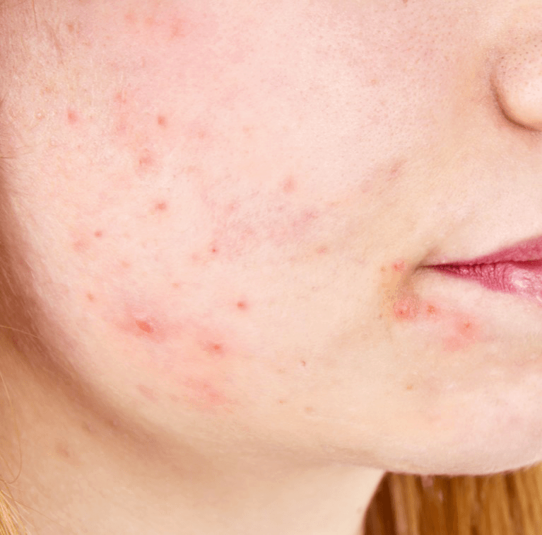 acne skin treatment with dr liv